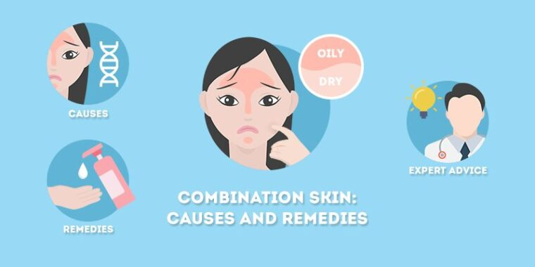 Causes of Combination Skin