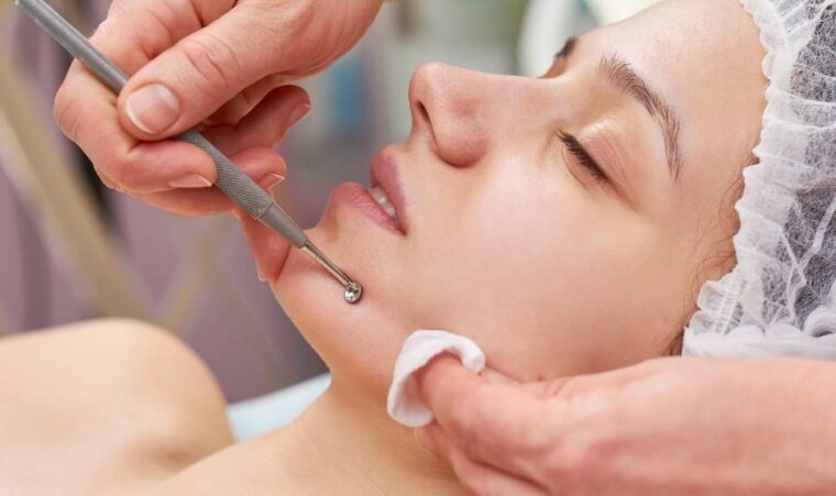 Extractions - best Facial treatment
