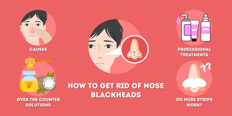 How To Remove Blackheads Easily: Remove Deep Blackheads In 5 Minutes