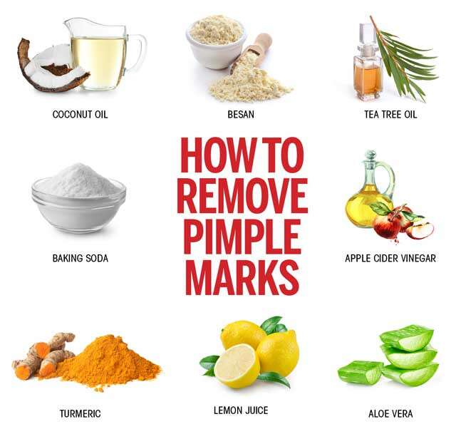 How To Remove Dark Spots Caused By Pimples: Medicine For Acne And Dark Spots